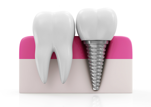 implants-dental