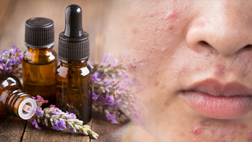 levender-oil-treating-Oily-Skin-and-acne